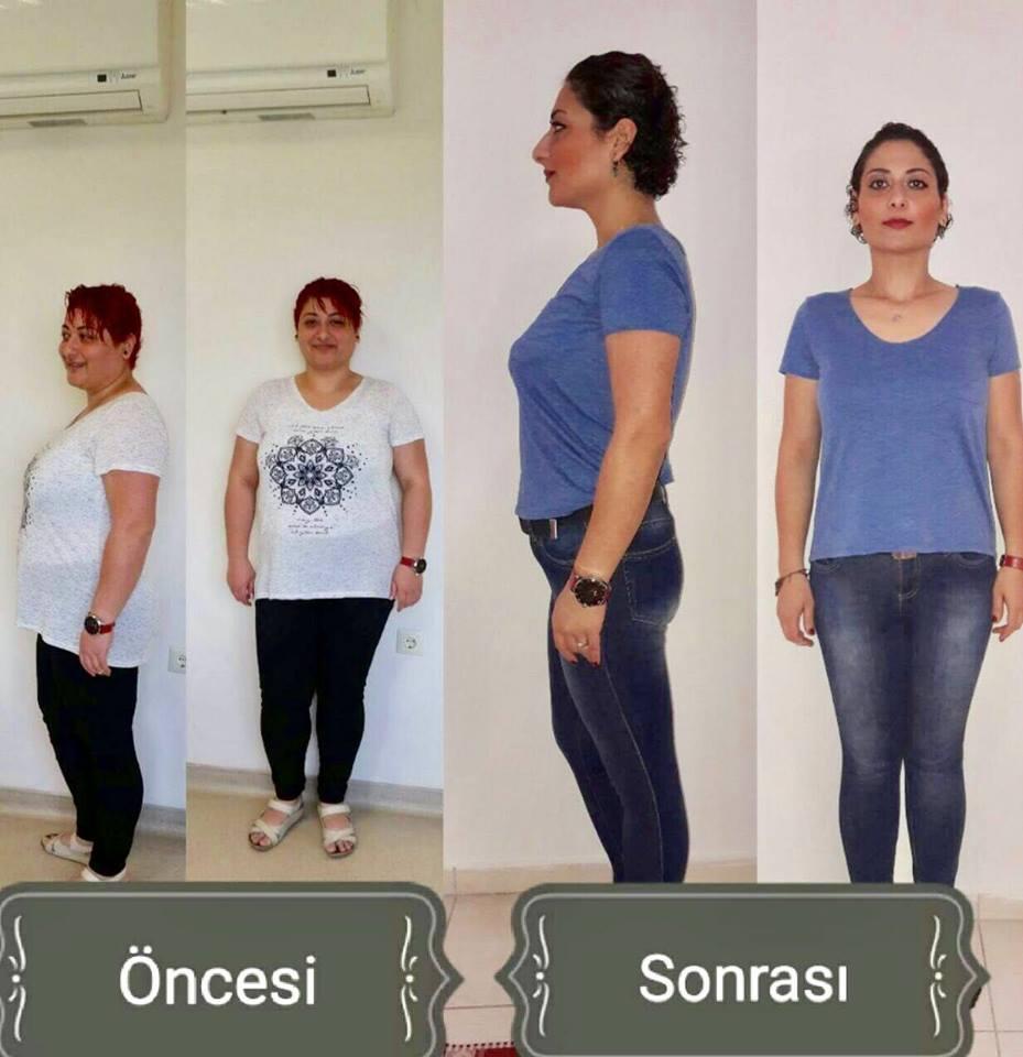 Degerli hastamiz Sezen hanim,Mide küçültme yöntemi ile 33 kg veren hastamız hem formuna hemde saglikli bir yasama kavusmustur.Kendisine Saglikli ve Sifali günler dileriz