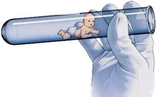 Tüp Bebek Yöntemine Dair Herşey