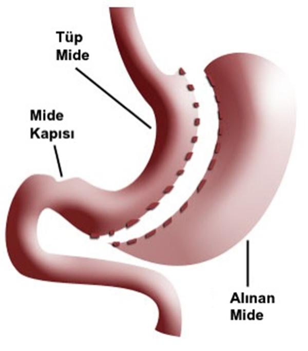 antalya tüp mide ameliyatı
