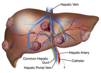 pankreas ve safrayolu hastalıkları