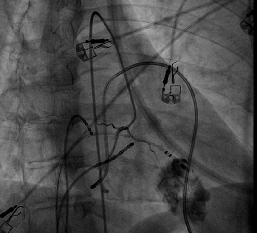 Epikardiyal Ablasyon: Kalbin dış zarından yapılan ablasyon